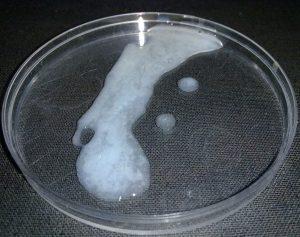 1280px-Human_semen_in_a_petri_dish